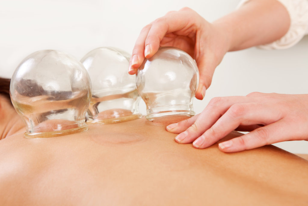 Fire cupping being used as part of a massage therapy session